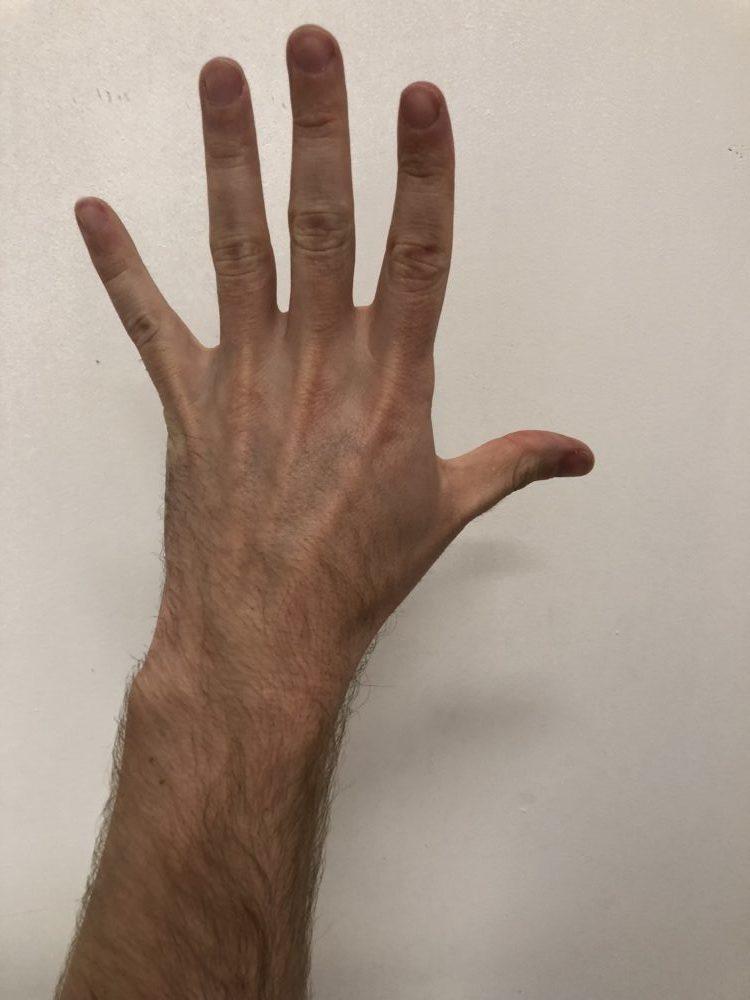 Oefeningen handtherapie for Vocht afdrijven